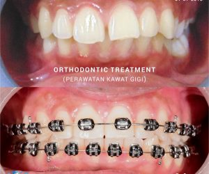 22 SEPT orthodontic treathment
